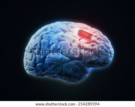 Human brain implant concept illustration  - stock photo
