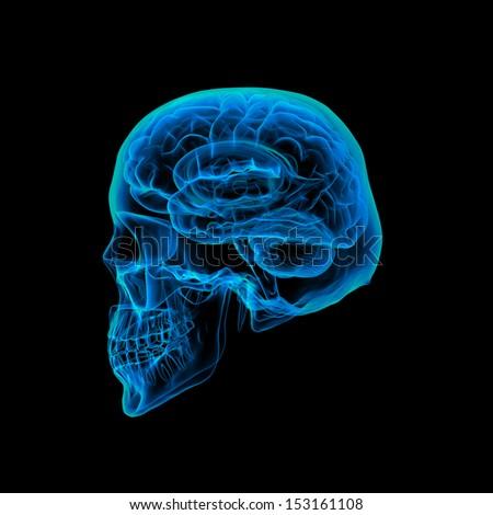 Human brain X ray - Skull X ray - stock photo