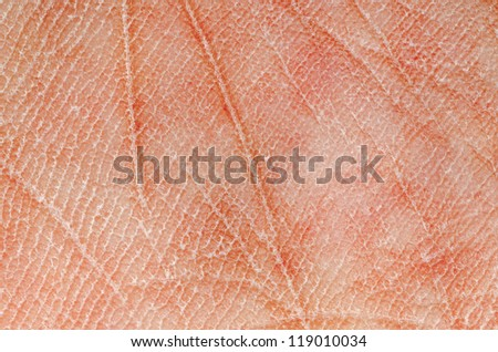 human dry skin texture