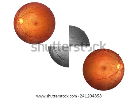Human eye anatomy, retina, optic disc artery and vein etc.  - stock photo