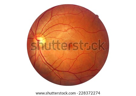 Human eye anatomy, retina, optic disc artery and vein etc. taking images with Mydriatic Retinal cameras - stock photo
