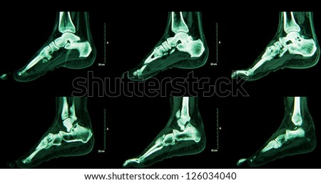 Human foot ankel and leg  CT - stock photo