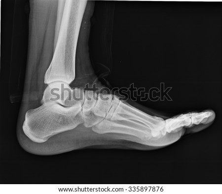 human foot ankel leg xray picture stock photo 335897876 - shutterstock, Skeleton