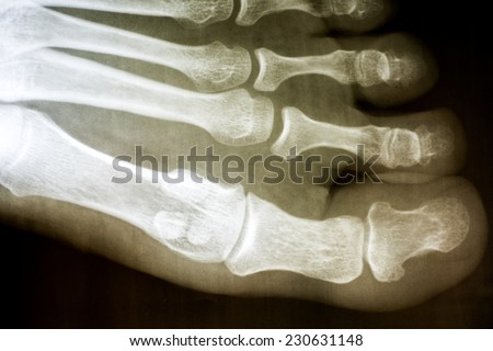 Human Foot X-Ray On Black Background - stock photo