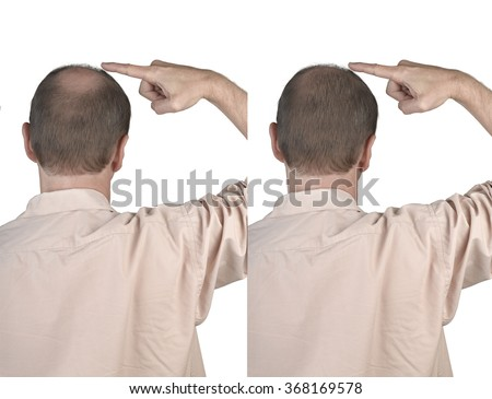 Human hair loss solution concept - adult man hand pointing his bald head - stock photo