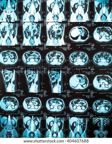 Human kidney magnetic resonance image (MRI), kidney roentgenogram, kidney stone imaged on film. - stock photo