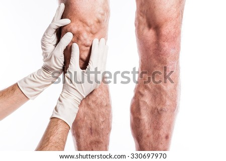 human leg with blocked veins, thrombosis, phlebitis, and standing on a white background, with depth of field Photo - stock photo