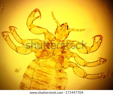 Human louse (Pediculus humanus) - permanent slide plate under high magnification - stock photo