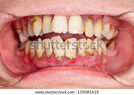 Human mouth before dental treatment plaque on teeth. - stock photo