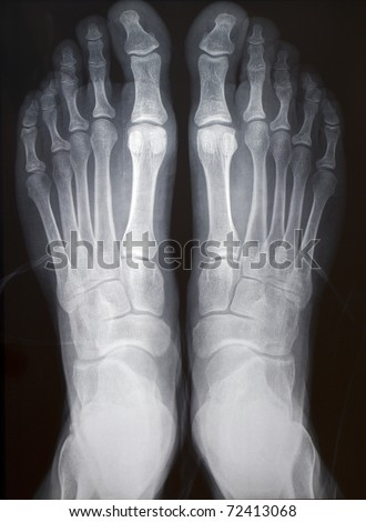 human right and left foot ankle xray picture (top view)