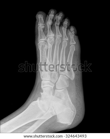 human right foot ankel xray picture (external side)