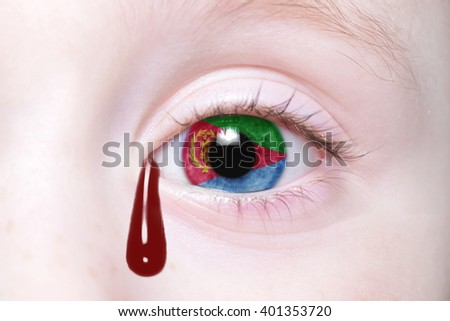 human's eye with national flag of Eritrea with bloody tears. concept - stock photo