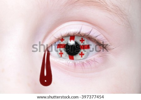 human's eye with national flag of georgia with bloody tears. concept - stock photo
