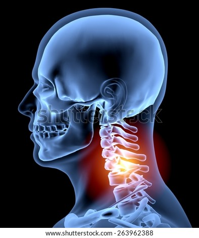 Human Spine. 3D. Neck in pain x-ray - stock photo
