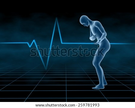 human with Heart disease on cardiogram background,medical concept.