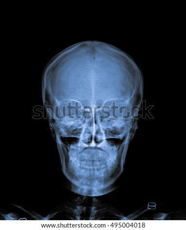 human x ray skull front view.