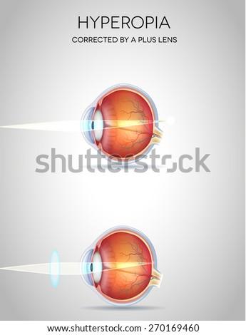 Hyperopia and Hyperopia corrected by a plus lens. Eye vision disorder - stock photo