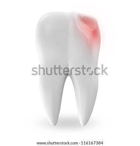 Illness Tooth isolated on white background - stock photo