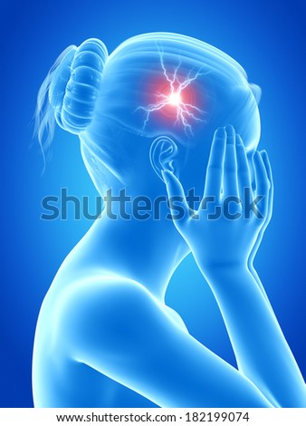 illustration of a woman having a migraine - stock photo
