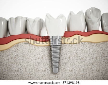 Illustration of teeth showing dental implant structure - stock photo