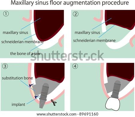 Megumi ito39s portfolio on shutterstock for Floor of the maxillary sinus