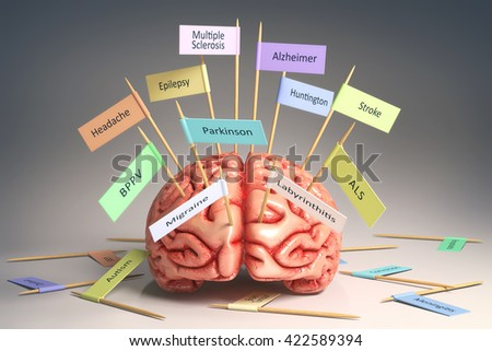 Image of a brain on the table with various nameplates of various diseases that can affect our brain. It's a 3D image with nameplates stuck by toothpick. Clipping path included. - stock photo