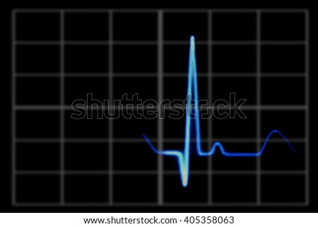 image of electrocardiogram on monitor