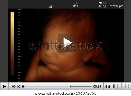Image of newborn baby like 4d ultrasound of baby in mother's womb. - stock photo