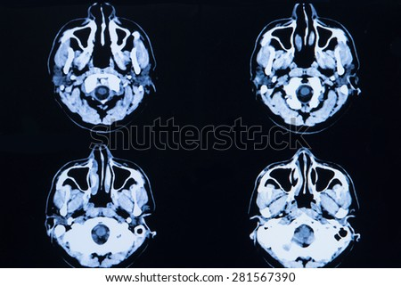 images from a computerized tomography of the brain and skull - stock photo