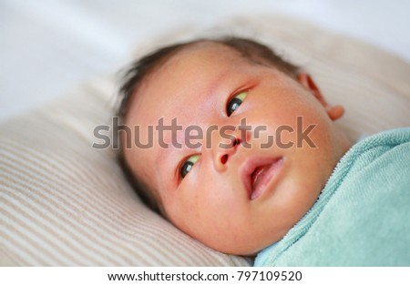 Infant with Neonatal hyperbilirubinemia. Jaundice.