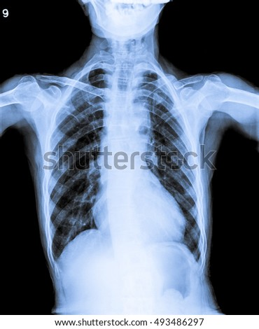 infected chest x ray.