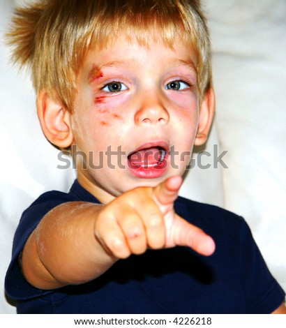 Injured boy pointing - stock photo