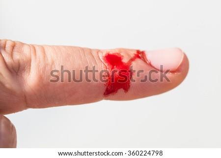 injured finger with dirty open cut