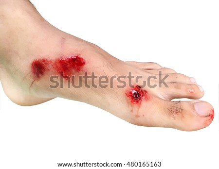 Injured foot with bleeding abrasion wound isolated on white background.