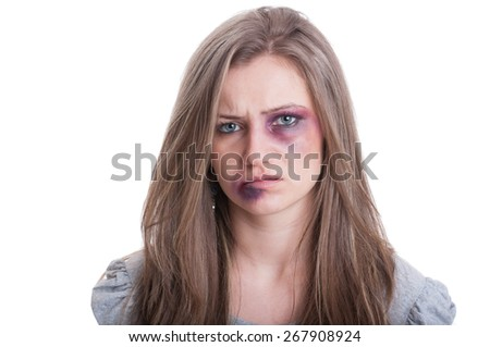 Injured woman with bruised eye and lip. Domestic violence against women concept on white background - stock photo