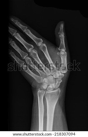injury of wrist joint x-rays image