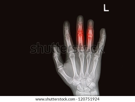 injury or pain full of hand and finger  x-rays image - stock photo