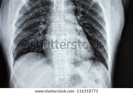 Interesting X-Ray film of female chest