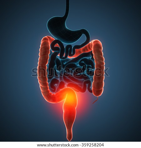 intestines disease illustration