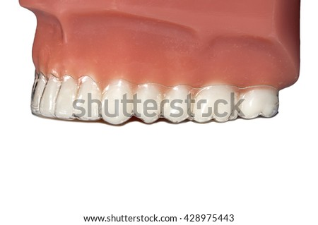 invisible orthodontic removable aligners teeth jaw