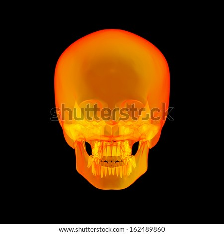Isolated human x ray skull on black background - back view - stock photo