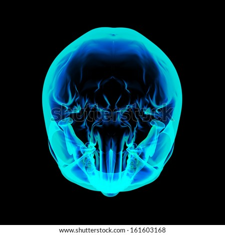 Isolated human x ray skull on black background - top view - stock photo