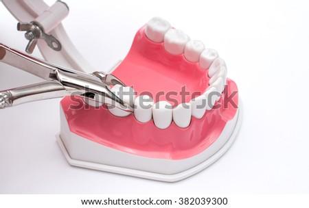 jaw model and set dental on white background - stock photo