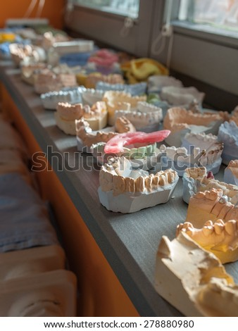 jaw molds - stock photo