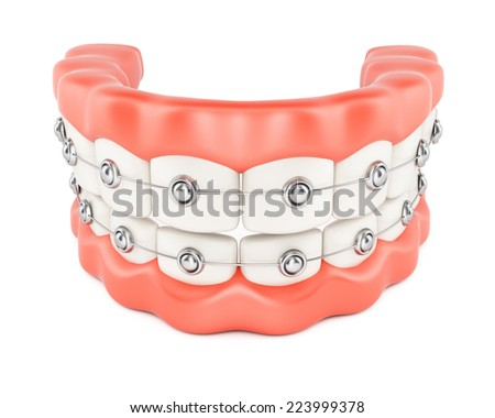Jaws with dental braces isolated on white background. 3d rendering image - stock photo