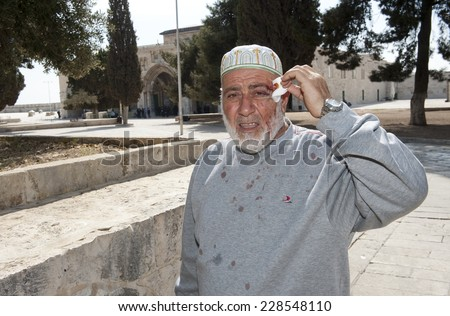 JERUSALEM, ISRAEL - OCT 08: A wounded muslim is showing his wound after fighting with Israeli officers in front of the al-aqsa mosque on the temple-mount in Jerusalem, October 08, 2014 in Israel - stock photo