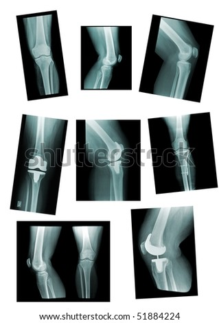 knee collection: x-ray of knee joint, replacement, different views - stock photo
