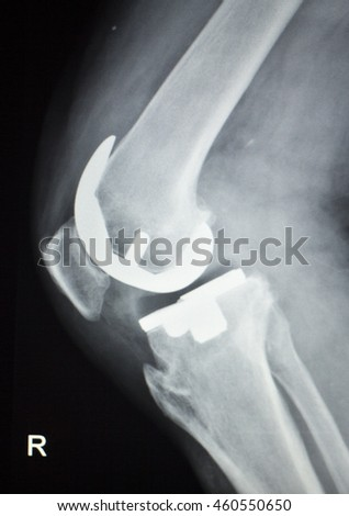 Knee joint replacement orthopedic titanium metal Traaumatology ball and socket implant x-ray image of old age patient.