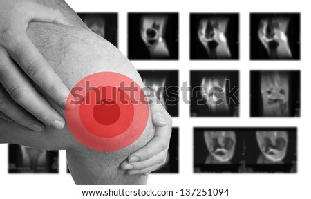 Knee Problems and MRI images / Knee Problems - stock photo