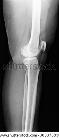 knee with total replacement x-ray image on black background - stock photo